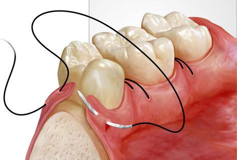 dental_matacic_03